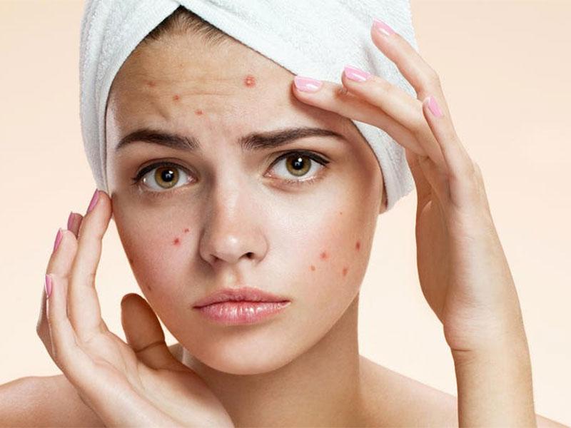 Bagno Di Vapore Brufoli : Rimedi naturali per brufoli comedoni e acne me magazine