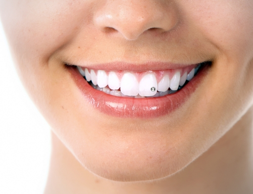 Brillantino al dente: come avere un sorriso da star!